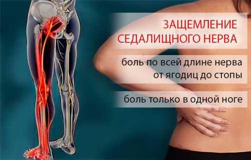 После нескольких раз боли утихнут благодаря снятию напряжения в спине
