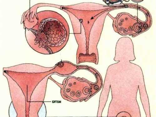 Его механизм запускается во время гормональных изменений, наблюдающихся при удалении детородного органа