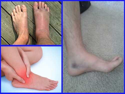 Болит нога после перелома лодыжки