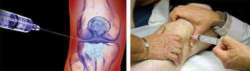 Техника введения дипроспана в колено