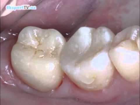 Сколько будет болеть зуб, поставили мышьяк