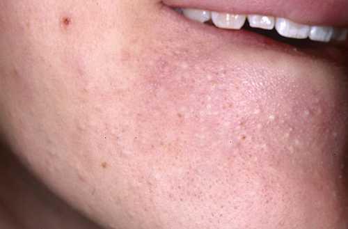 Что то твердое под кожей на лице