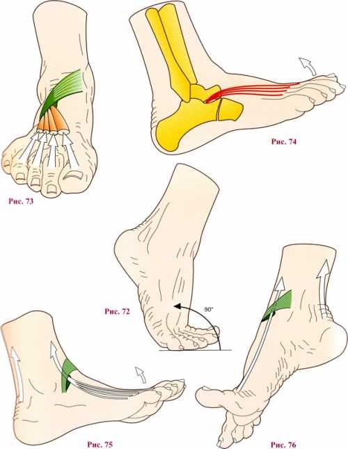 Важно защитить ногу от активных нагрузок конечность располагать горизонтально с помощью валика, если пациент должен сидеть, ногу необходимо положить на стул