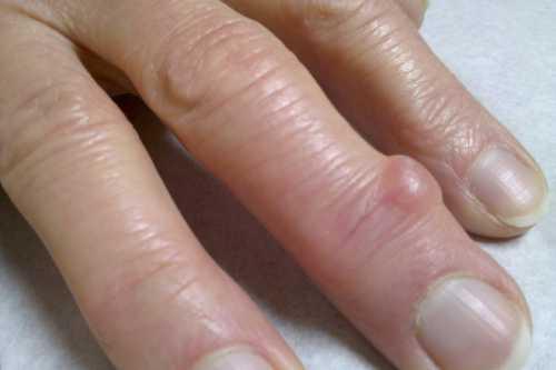 Раз в несколько лет на пальце вырастает шишка и потом сама исчезает что это