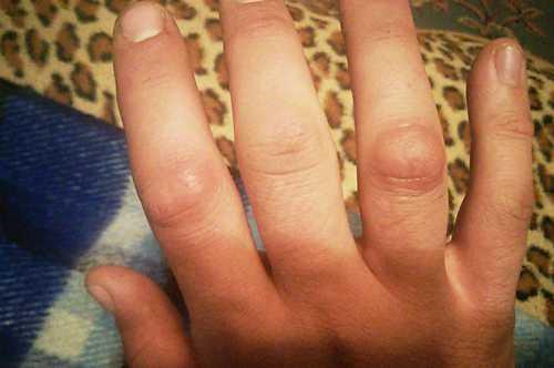 Плоско клеточный рак кожи занимает второе место по распространенности среди злокачественных опухолей кожи