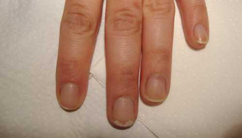 Чем бы ни было спровоциро вано отслоение ногтя от ногтевого ложа, лечение должно быть своевременным и эффективным