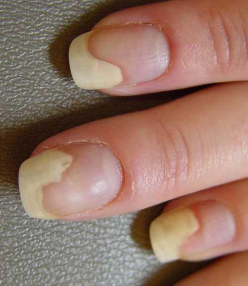 Как лечить отслоение ногтя