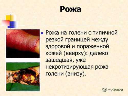 При тяжелом течении заболевания, развитии осложнений абсцесс, флегмона и дрвозможны сочетание бензил пенициллина и гентамицина, назначение цефалоспоринов