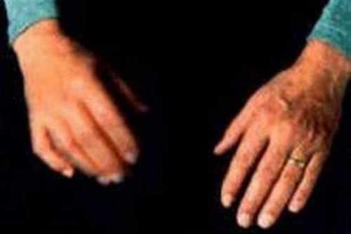 Она занимает более всех случаев дрожания рук