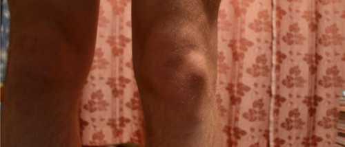 Поэтому болит под коленом в результате ущемления нерва