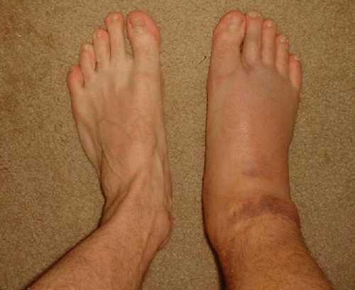 После перелома лодыжки нога краснеет горячая и отекает