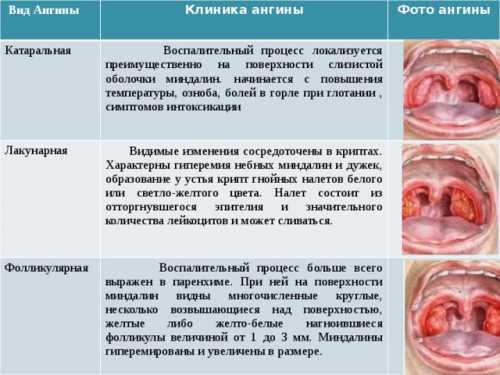 Грибковая ангина