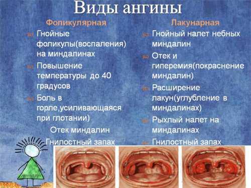 Виды ангин