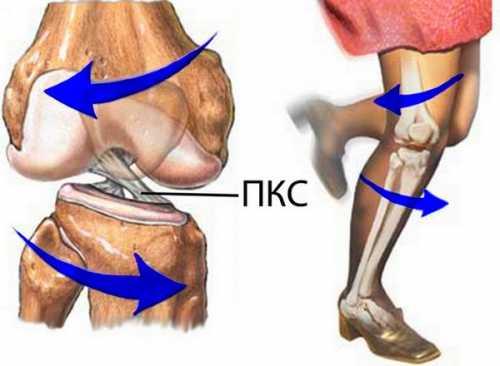 Как укрепить связки колена
