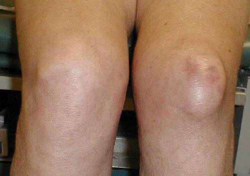 Возле колена вырос мягкий нарост