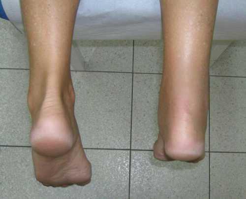 Лечение подвывиха и артроза голеностопного сустава начинают с мануальных манипуляций, призванных репозировать сустав, тевернуть его в нормальное исходное положение