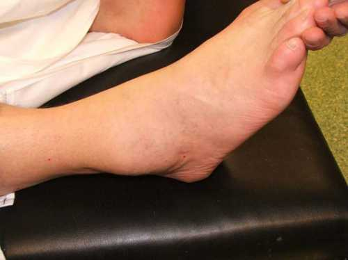 Опух голеностопный сустав