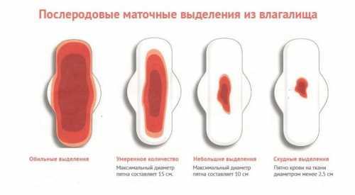 Гормональные причины связаны с дисфункцией яичников, когда избыточная концентрация эстрогенов провоцирует слишком сильное разрастание эндометрия