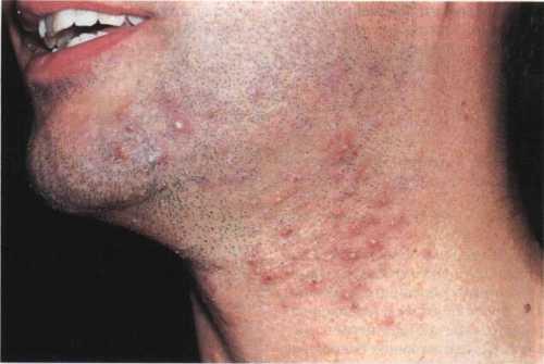 Токсичные укусы клещей, блох, комаров, мышей, крыс