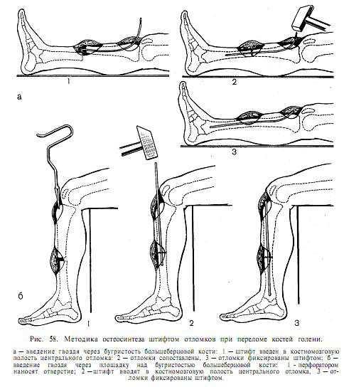 Потребуется постараться напрячь колено, чтобы не производились движения ногой