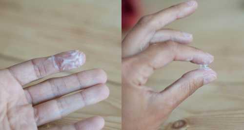 Сальпингит воспалительное заболевание маточных труб