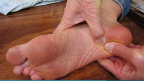 Болезни пятки стопы
