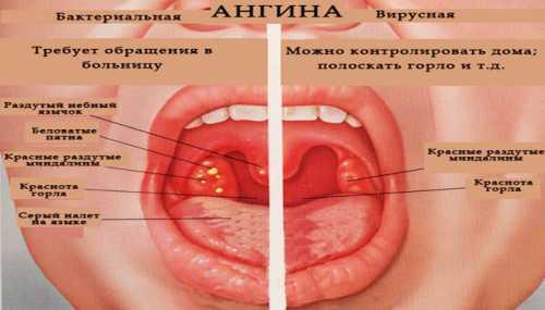 Как передается ангина