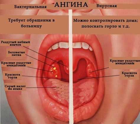 Биопарокс это антибиотик широкого спектра действия, обладающий противовоспалительным и обезболивающим действием