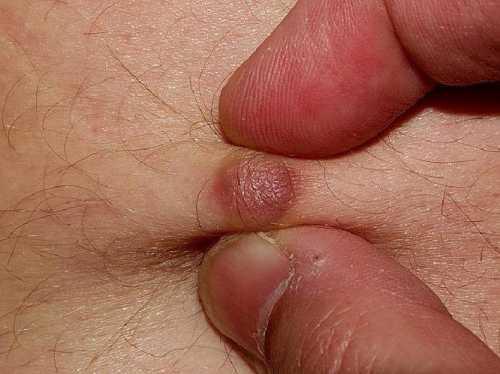 Существуют различные типы псориаза, но большинство из них выглядят как красные, воспаленные пятна