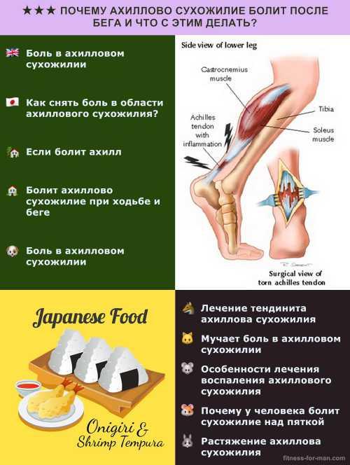 Болит нога в области ахиллова сухожилия