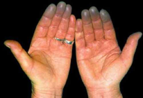 Руки немеют изза того, что нервы начинают плохо работать в результате плохого кровотока