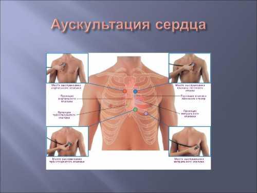 Во время проведения аускультации нужно выполнять все просьбы доктора принимать необходимое положение, делать физические упражнения, задерживать дыхание