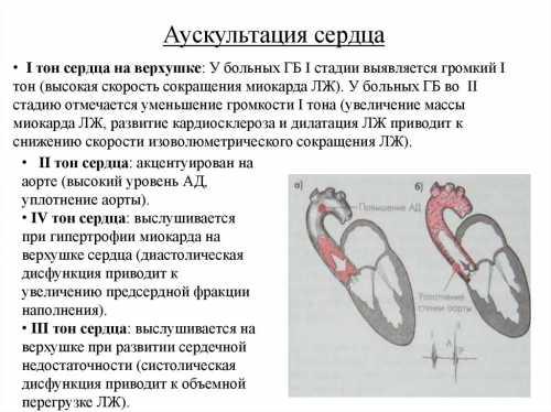 Это особые зоны проведения шумов, они являются точной проекцией клапанов сердца на грудной клетке