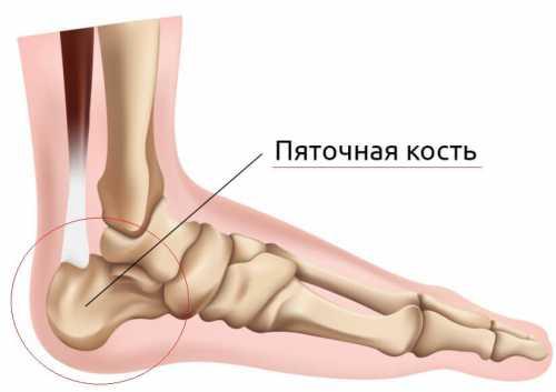 У каждого боль может быть разной периодической, когда наступаешь на пятку, или постоянной ноющей, сменяющейся острой при ходьбе