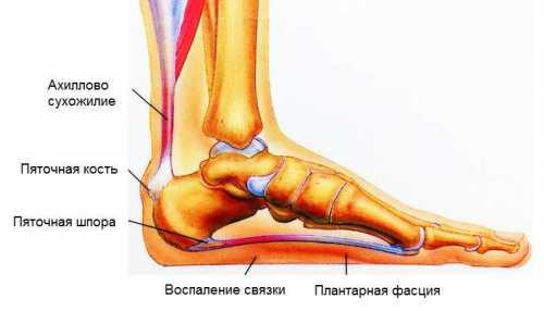 Трещины на пятках, являющиеся следствием диабетиче ской стопы, микоза или дерматита