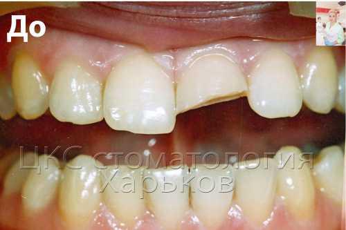 Откололась половина переднего зуба