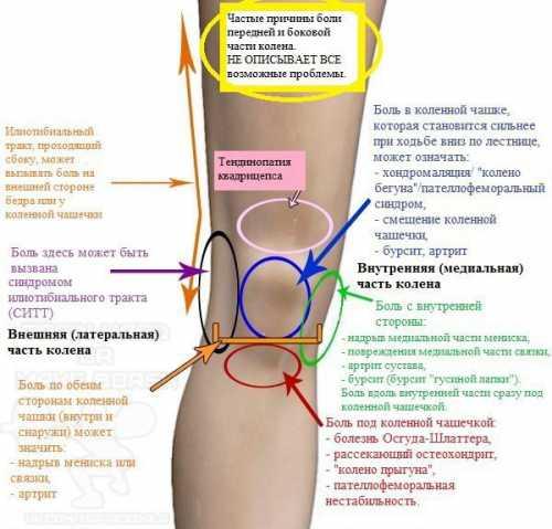 Если хрустит колено при приседании, это, в первую очередь, может свидетельствовать о наличии болезни опорно двигательного аппарата