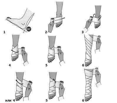 Для им мобилизации голеностопного сустава эластичным бинтом требуется сам бинт и специальные зажимы для фиксации