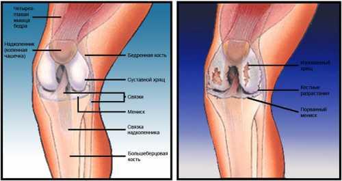 Воспалительные процессы артрит, синовит, тендинит, бурсит